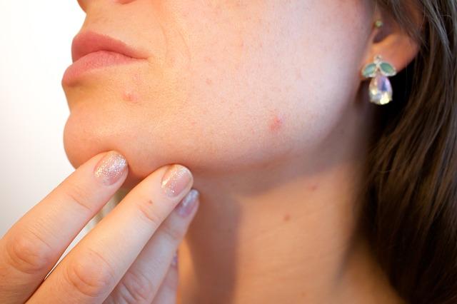 Tout savoir sur la varicelle